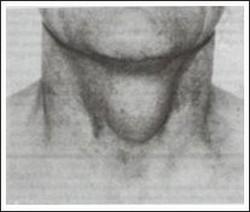 Kista duktus tiroglosus
