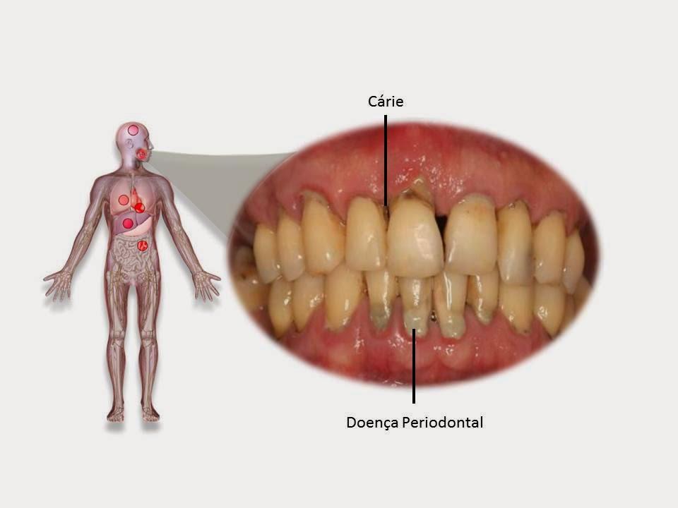 IMAGEM%2Bmedicina%2Bperiodontal - MEDICINA PERIODONTAL