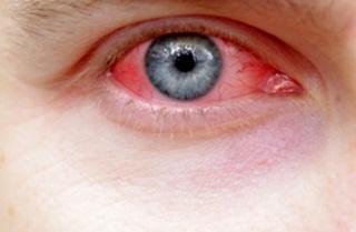 Mengungkap mitos mata merah yang menular lewat saling pandang