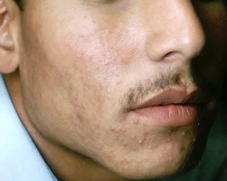 جوانی دانه اکنه ولگاریس Acne vulgaris