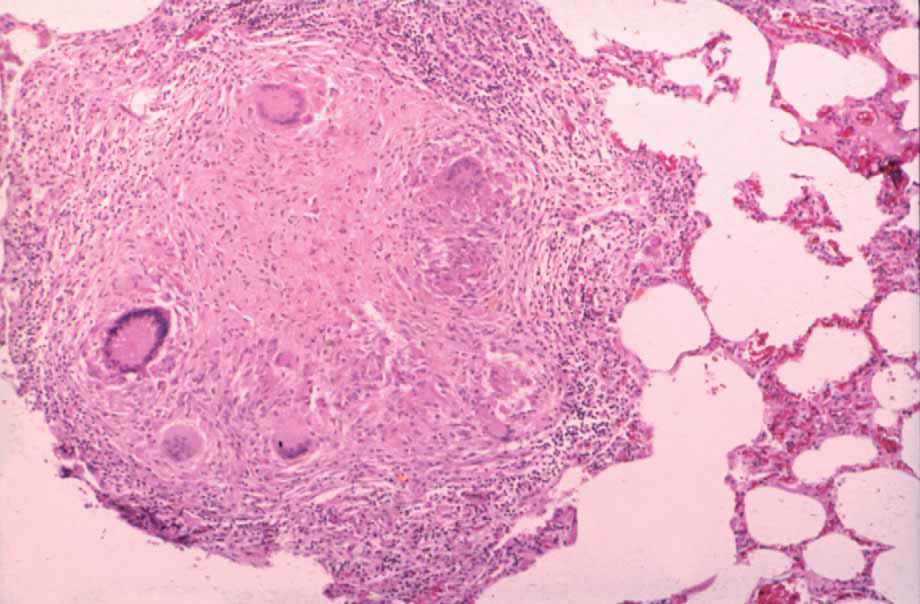 Histopatología: TUBERCULOSIS