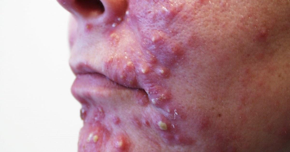 Face Spots Natural Treatment
