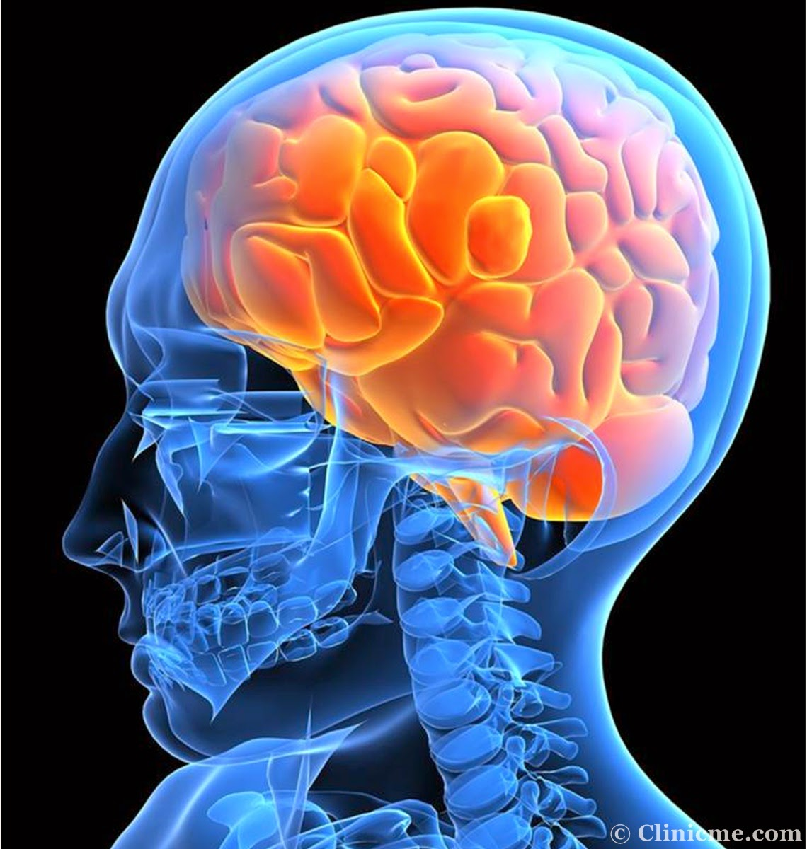 healing the brain Brain healing is the process that occurs after the brain has been damaged if an individual survives brain damage, the brain has a remarkable ability to adapt.