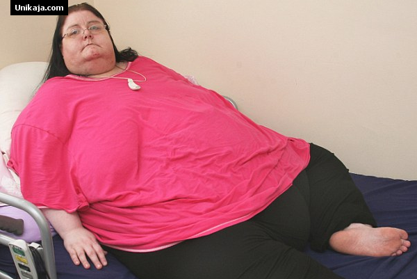 image 2 4 Tahun Tak Keluar Rumah Karena Berat Badan Capai 254 Kg