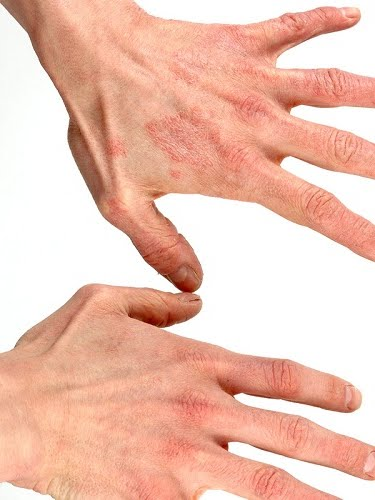 Jenis jenis penyakit kulit
