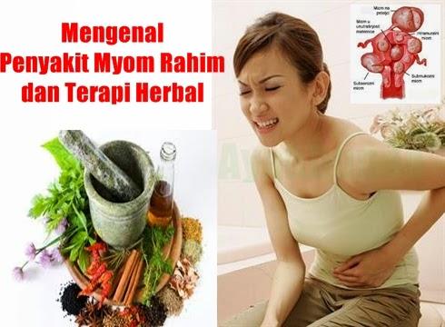 mengenal-myom-rahim-dan-terapi-herbal