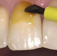 fluor dental barniz
