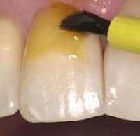 fluor dental barniz