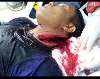 Gambar Ngeri Anggota Polis DiTetak Rambo Bentong