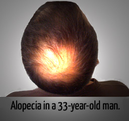 Alopecia in a 33-year-old man