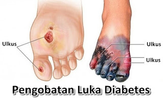Cara Mengobati Luka Borok Diabetes Tanpa Amputasi