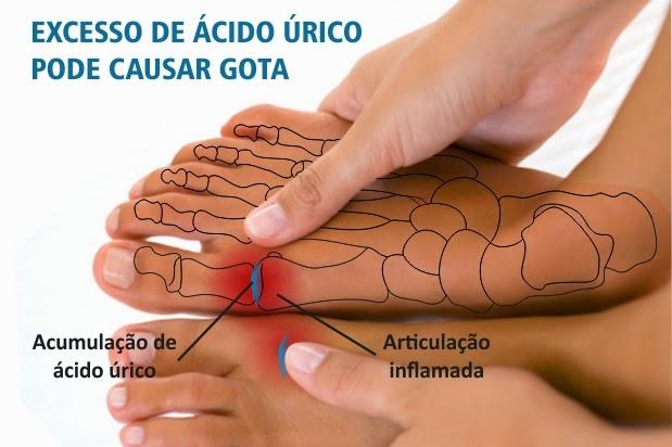 medicina natural para acido urico colesterol acido urico alto gastroenteritis tratamiento de acido urico natural