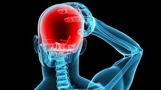 Migraine Diseases