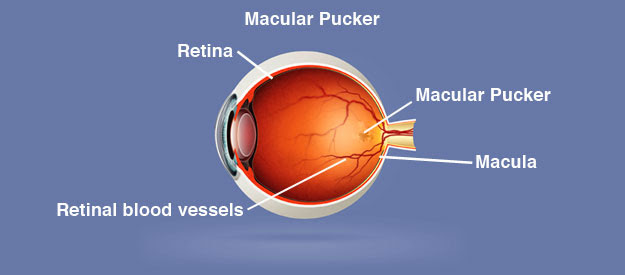 Macular Pucker Causes, Symptoms, Diagnosis, Treatment