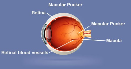 Macular Pucker Causes Symptoms Diagnosis Treatment