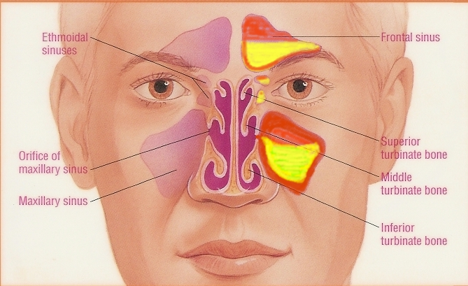 how to fix sinus problems