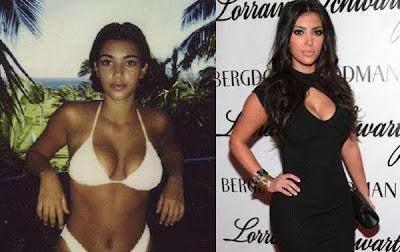 Kardashian  on Kim Kardashian Before And After   Kantrityyliin
