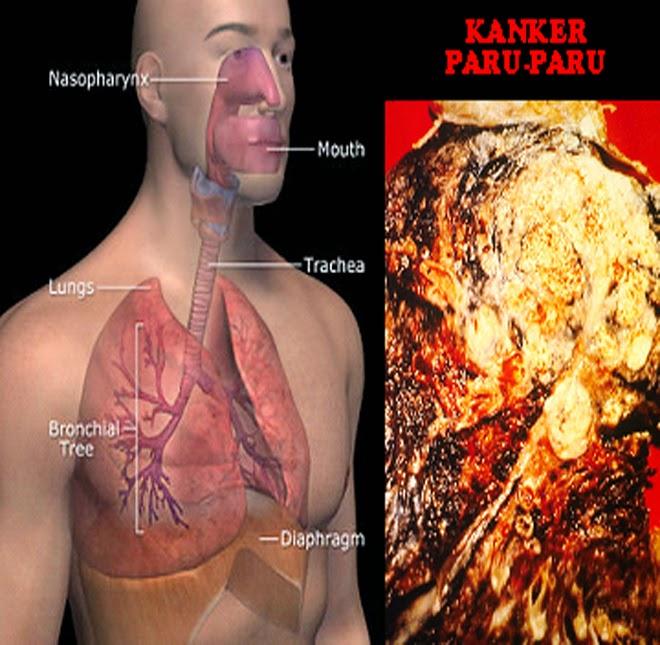 pengobatan tumor Paru paru alternatif, obat kanker paru, pengobatan kanker paru