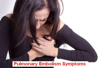 Pulmonary Embolism Causes, Signs-Symptoms And Treatment
