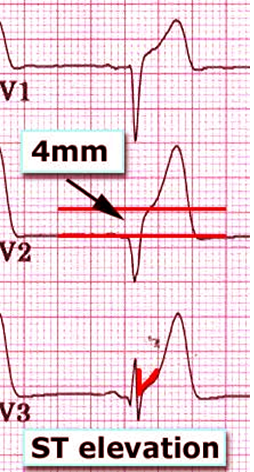 What is a NonSTElevation Myocardial Infarction