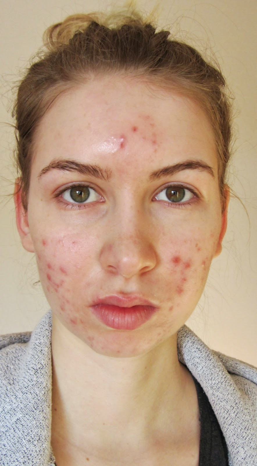 dangers from accutane
