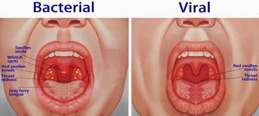 Throat Sti 40
