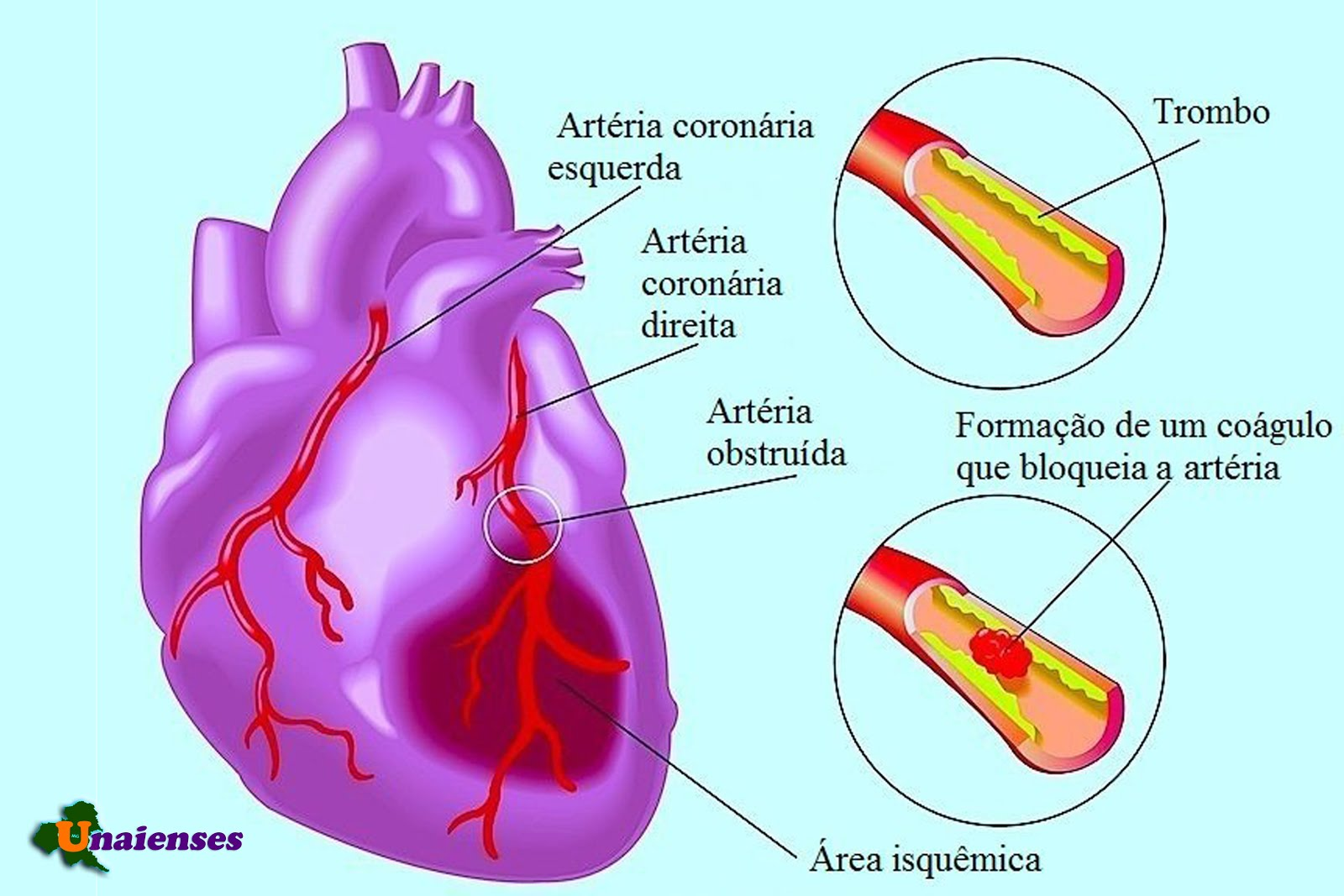 taking a look at myocardial infraction In myocardial infarction, it has been shown to be effective in the long-term prevention of arterial occlusion and reocclusion  in low doses, aspirin possesses a selectivity for the inhibition of platelet thromboxane formation [44].