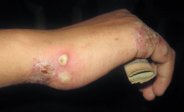 penyakit gatal kulit scabies