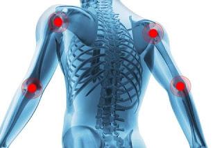 O tratamento da artrose se baseia em métodos variados, e varia em função do progresso da doença. Em suma são utilizados principalmente medicamentos analgésicos como o paracetamol e anti-inflamatórios, como o ibuprofeno. É também possível utilizar medicamentos mais fortes (por exemplo, a cortisona), em caso de dores severas. Outras terapias são baseadas na fisioterapia e, em casos mais avançados, em cirurgia com implante de uma prótese.