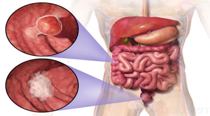 13 Tanda tanda Kanker Usus – Faktor Risiko, Diagnosa dan Pengobatan Medis