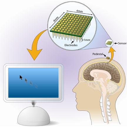 Brain Computer Interface8