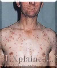 مؤلمة لمرضى الايدز (يمنع دخول 3.jpg
