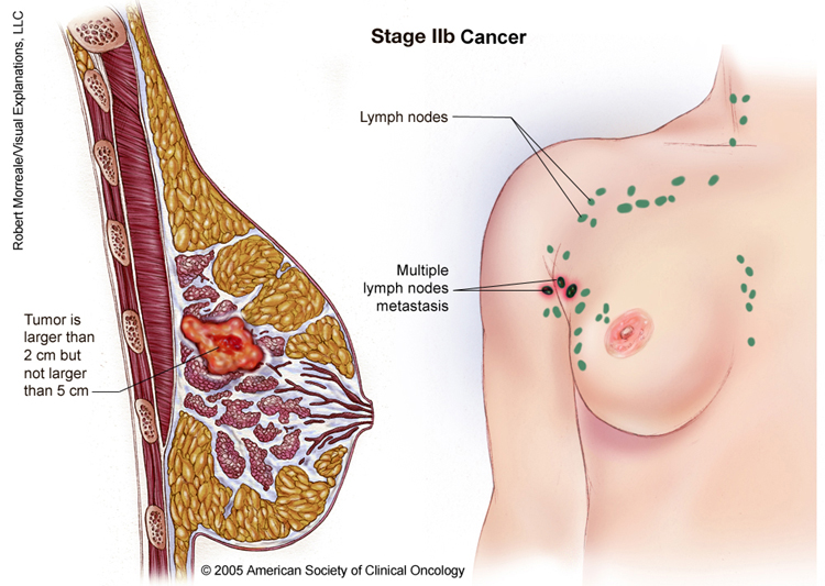 1 breast cancer stage: