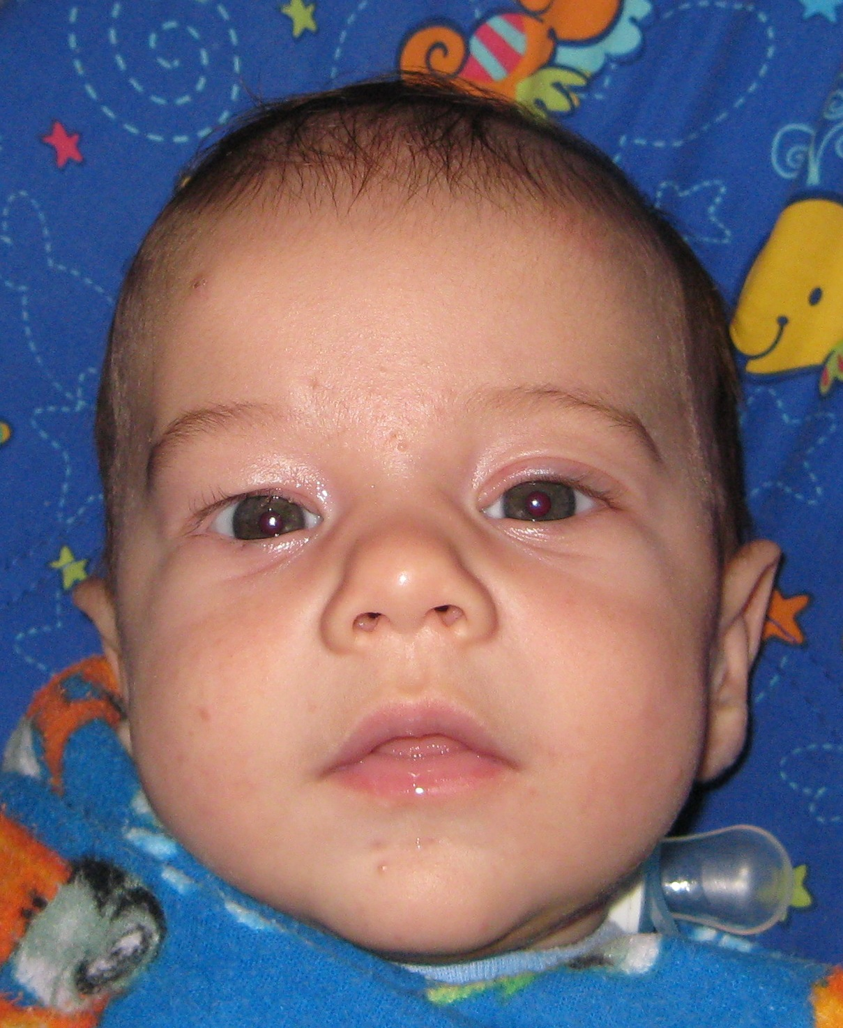 Congential Ptosis and Frontalis Sling Surgery: November 2008