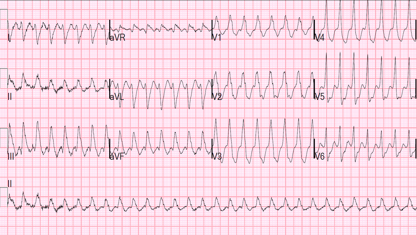 Lewis Lead 12 Ekg Diagram House Wiring Symbols Dr Smith S Ecg Blog Wide Complex Tachycardia Leads Do Not Rh Hqmeded Blogspot