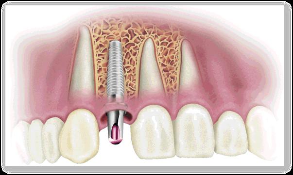 Cu sau fara implant dentar?