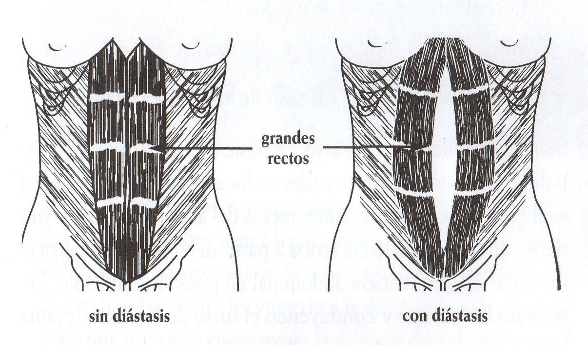 El complejo de los ejercicios de fuerza en el adelgazamiento