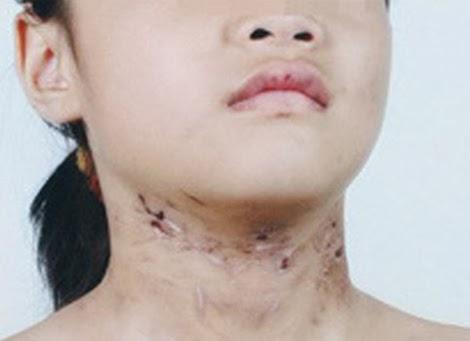 Người đánh con 6 tuổi gãy xương sườn bị khởi tố
