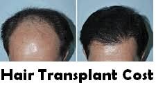 Much Does Hair Transplant Cost In Israel?