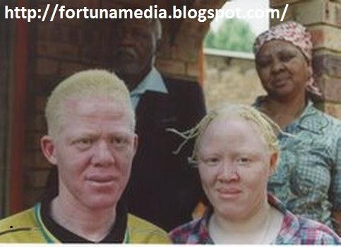 PHOTO;Kisah Derita Orang Albino Di Afrika,Diburu Untuk Diambil Bagian Tubuhnya