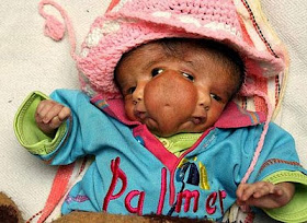 Foto: Bayi Bermata 4 Dan Berkepala 2 Dari India