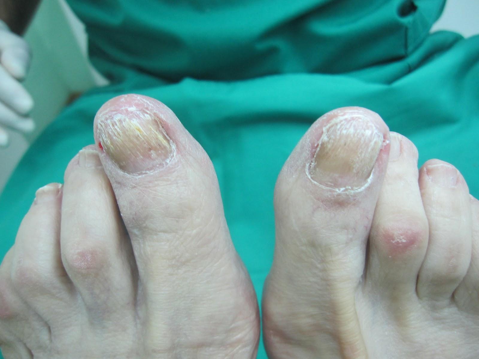 La novocaína del hongo de los pie las revocaciones