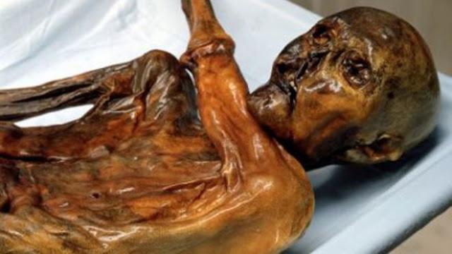 'Iceman' mummy