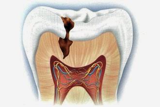 Traumatismo Dentoalveolar