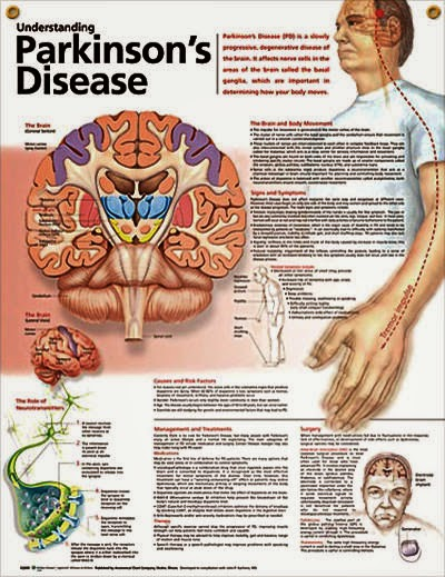 What are the advantages and disadvantages of ethical issues related to Parkinson's disease?