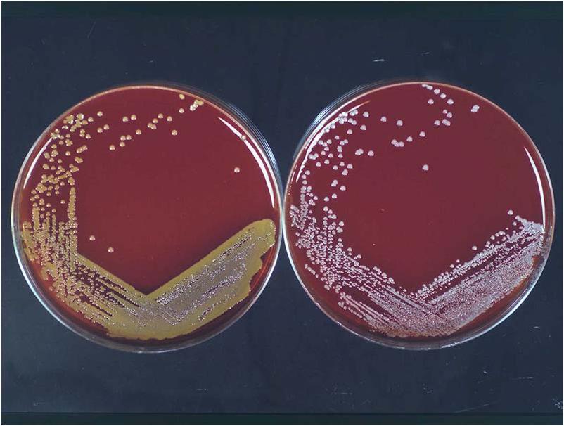 G 201 Nero Staphylococcus