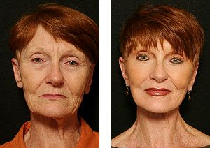 exercise work Facial that