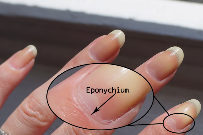 eponychium infection image information, Human Body