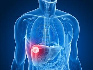 الغذاء الصحي لمصاب لاتهاب الكبد الوبائي