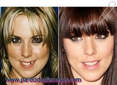 Mel C antes y después